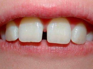 Diastema-denti