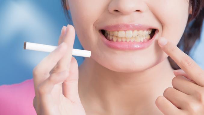 effetti sul fumo sui denti